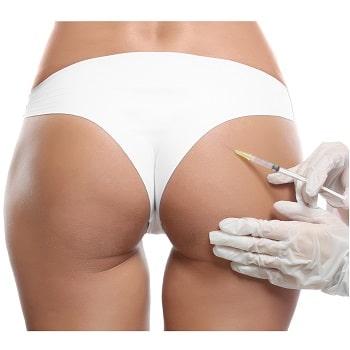 Non-surgical Brazilian Bum Lift